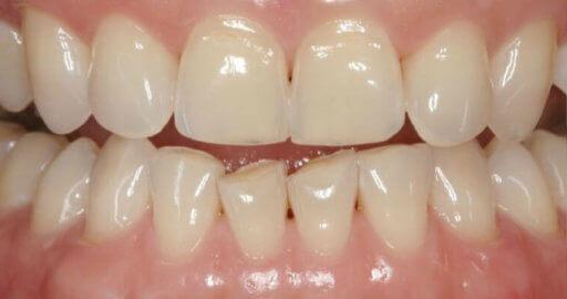 patient teeth 3 before